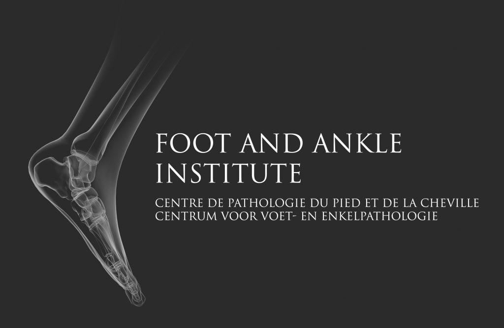 FOOT_NEG